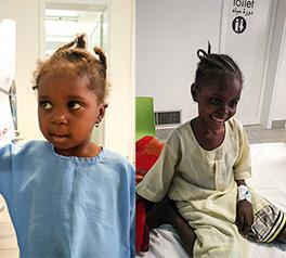 Aisha e Hawa nelle corsie del Centro pediatrico di EMERGENCY a Port Sudan