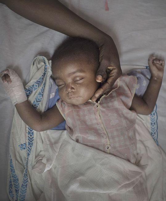 Un piccolo paziente nel letto del Complexe Pédiatrique di Bangui, in Repubblica Centrafricana