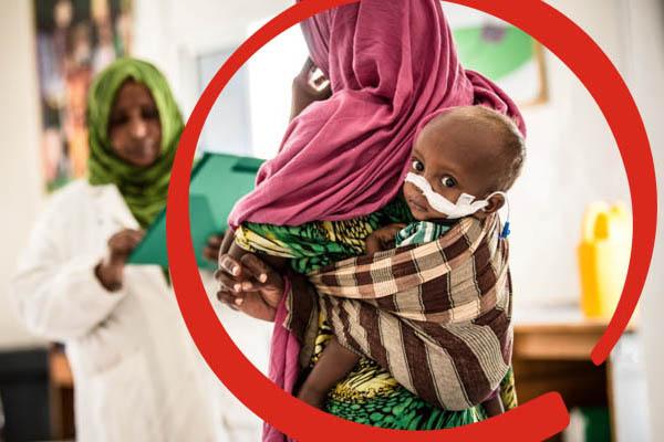 Milioni di bambini soffrono la fame