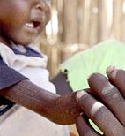 In Kenia mamme e bambini rischiano di morire di fame